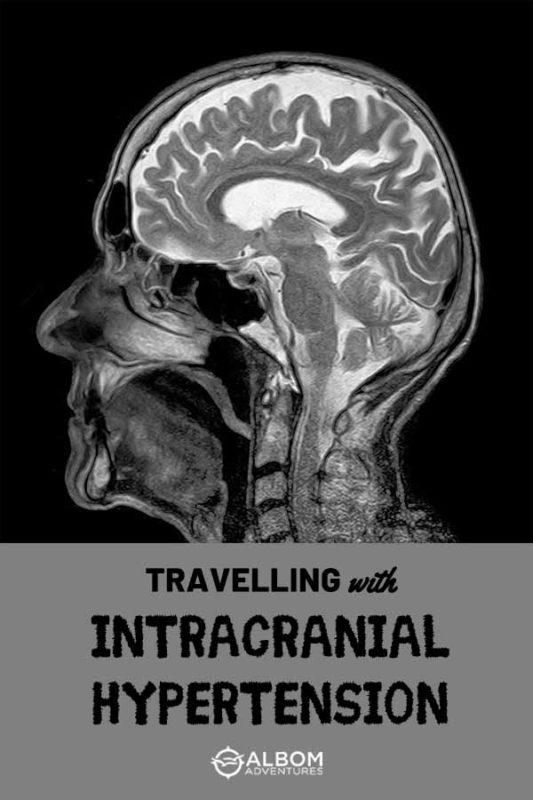 MRI side view of a human head